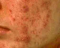 image_acne_kleur