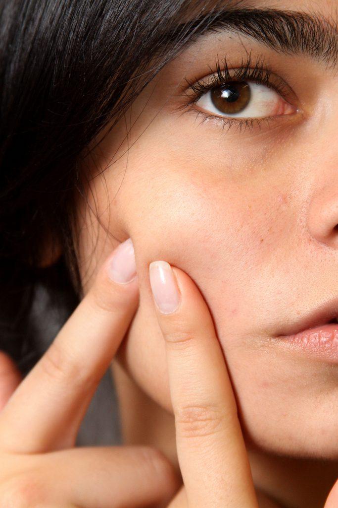 acne specialist rotterdam