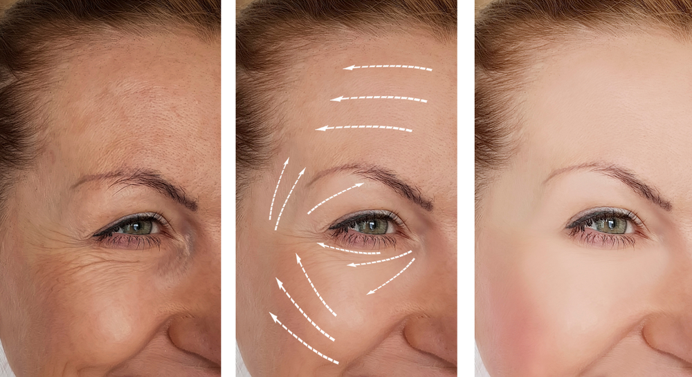 fillers gezichtsbehandeling rimpels kraaienpoten