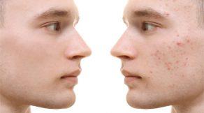 acne behandeling rotterdam